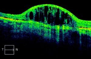 Macula degeneration - OCT Scan
