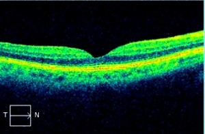 Normal Retina - OCT Scan